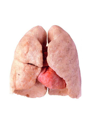 Wish asian cancer have lung anal vids